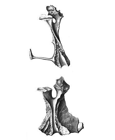 Опухоль возле косточки на ноге